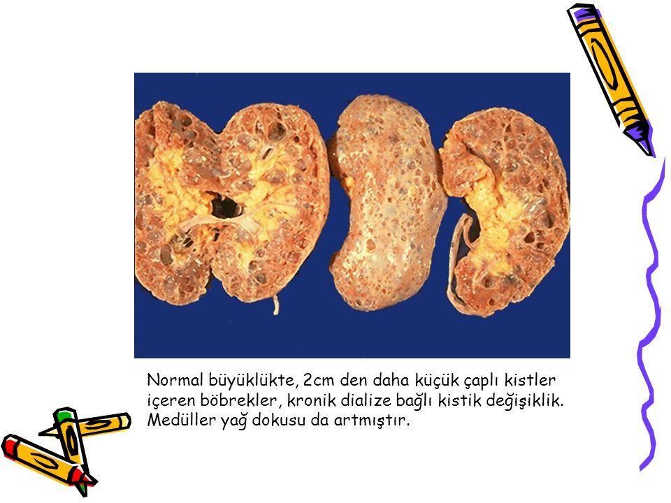 Normal büyüklükte, 2cm den daha küçük çaplı kistler içeren böbrekler, kronik dialize bağlı kistik değişiklik.