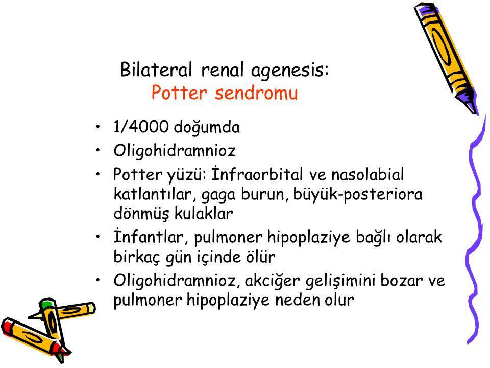 Bilateral renal agenesis: Potter sendromu 1/4000 doğumda Oligohidramnioz Potter yüzü: İnfraorbital ve nasolabial katlantılar, gaga burun, büyük-posteriora dönmüş kulaklar İnfantlar, pulmoner hipoplaziye bağlı olarak birkaç gün içinde ölür Oligohidramnioz, akciğer gelişimini bozar ve pulmoner hipoplaziye neden olur