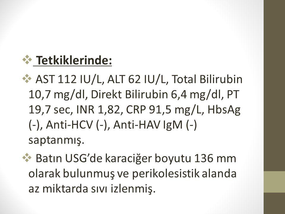  Tetkiklerinde:  AST 112 IU/L, ALT 62 IU/L, Total Bilirubin 10,7 mg/dl, Direkt Bilirubin 6,4 mg/dl, PT 19,7 sec, INR 1,82, CRP 91,5 mg/L, HbsAg (-),