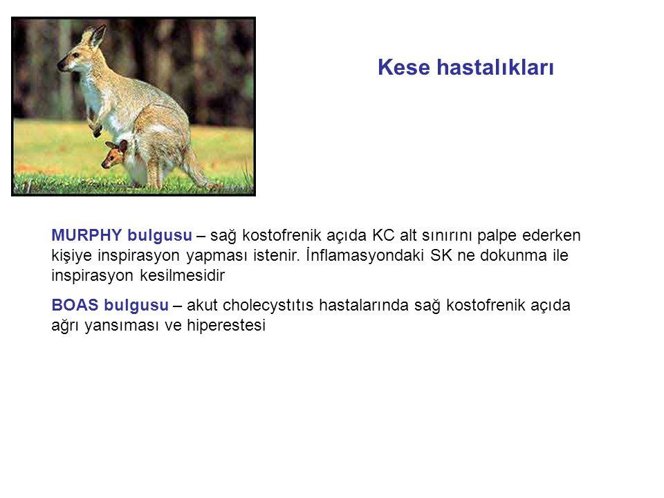 MURPHY bulgusu – sağ kostofrenik açıda KC alt sınırını palpe ederken kişiye inspirasyon yapması istenir.