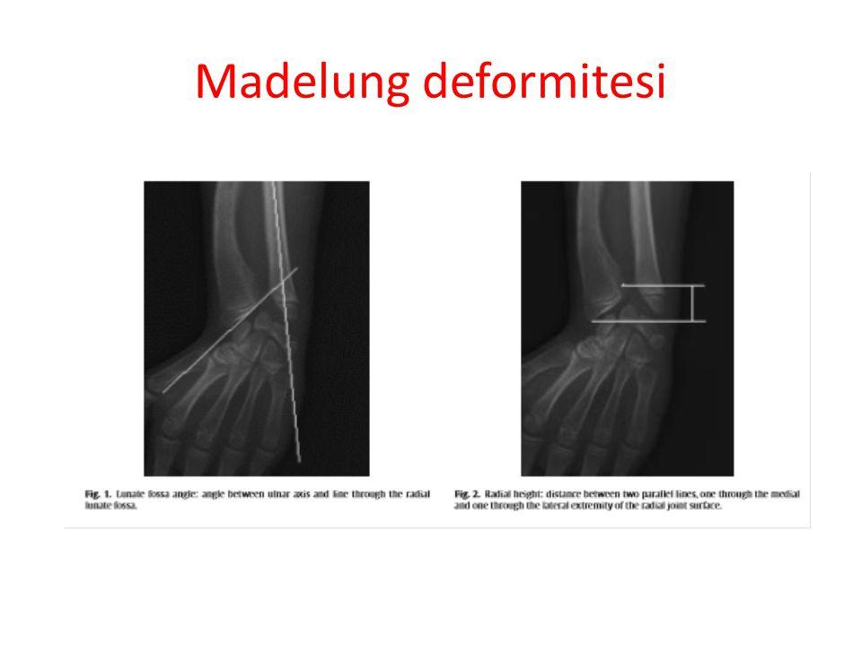 Madelung deformitesi