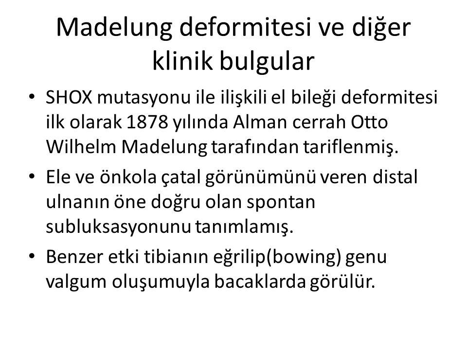 Madelung deformitesi ve diğer klinik bulgular SHOX mutasyonu ile ilişkili el bileği deformitesi ilk olarak 1878 yılında Alman cerrah Otto Wilhelm Made