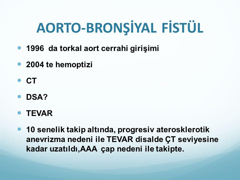 AORTO-BRONŞİYAL FİSTÜL 1996 da torkal aort cerrahi girişimi 2004 te hemoptizi CT DSA? TEVAR 10 senelik takip altında, progresiv aterosklerotik anevriz
