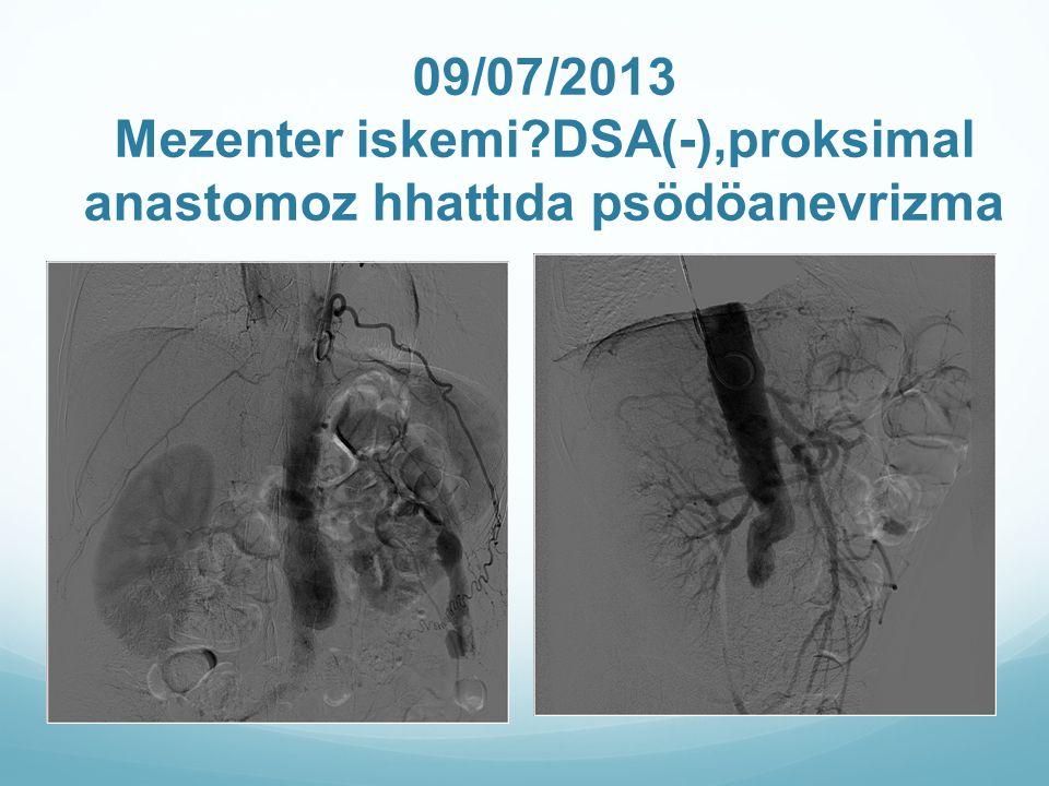 09/07/2013 Mezenter iskemi?DSA(-),proksimal anastomoz hhattıda psödöanevrizma