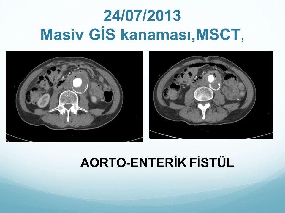 24/07/2013 Masiv GİS kanaması,MSCT, AORTO-ENTERİK FİSTÜL