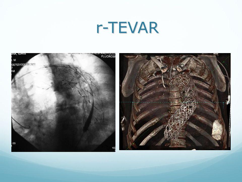 r-TEVAR