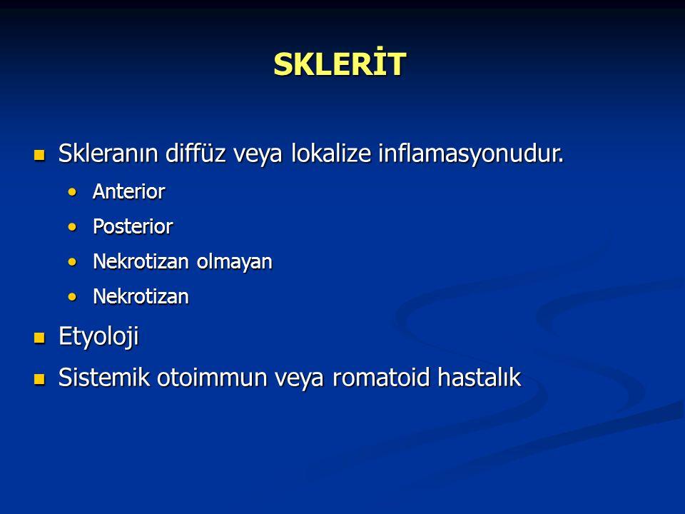 SKLERİT Skleranın diffüz veya lokalize inflamasyonudur. Skleranın diffüz veya lokalize inflamasyonudur. Anterior Anterior Posterior Posterior Nekrotiz