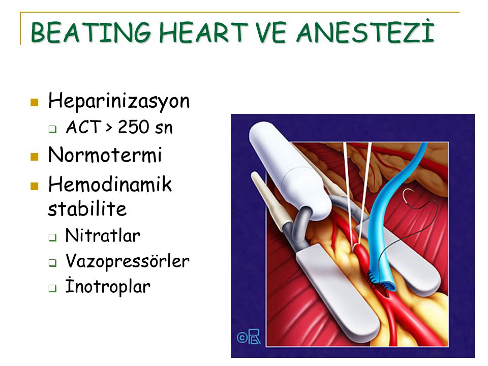 BEATING HEART VE ANESTEZİ Heparinizasyon  ACT > 250 sn Normotermi Hemodinamik stabilite  Nitratlar  Vazopressörler  İnotroplar