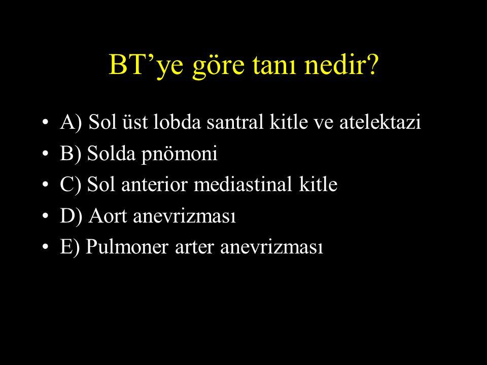 BT'ye göre tanı nedir? A) Sol üst lobda santral kitle ve atelektazi B) Solda pnömoni C) Sol anterior mediastinal kitle D) Aort anevrizması E) Pulmoner