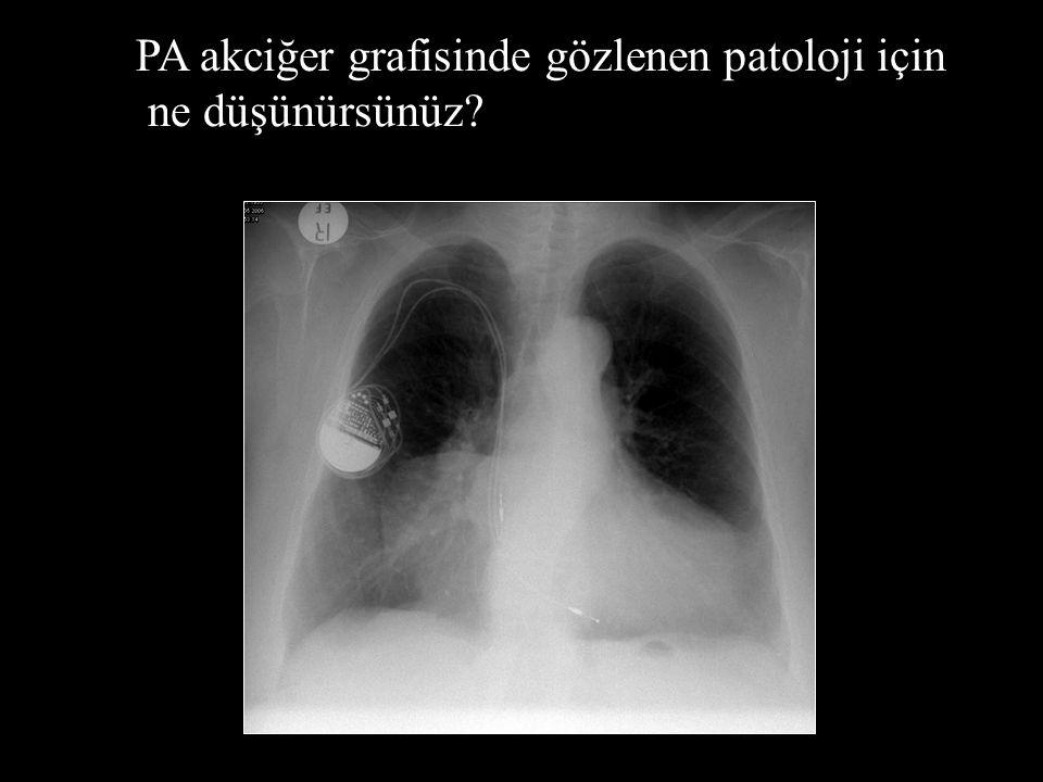 PA akciğer grafisinde gözlenen patoloji için ne düşünürsünüz?