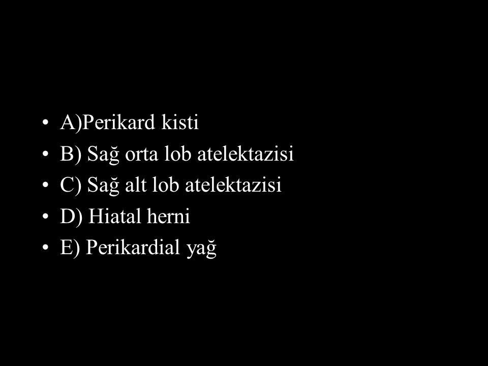 A)Perikard kisti B) Sağ orta lob atelektazisi C) Sağ alt lob atelektazisi D) Hiatal herni E) Perikardial yağ