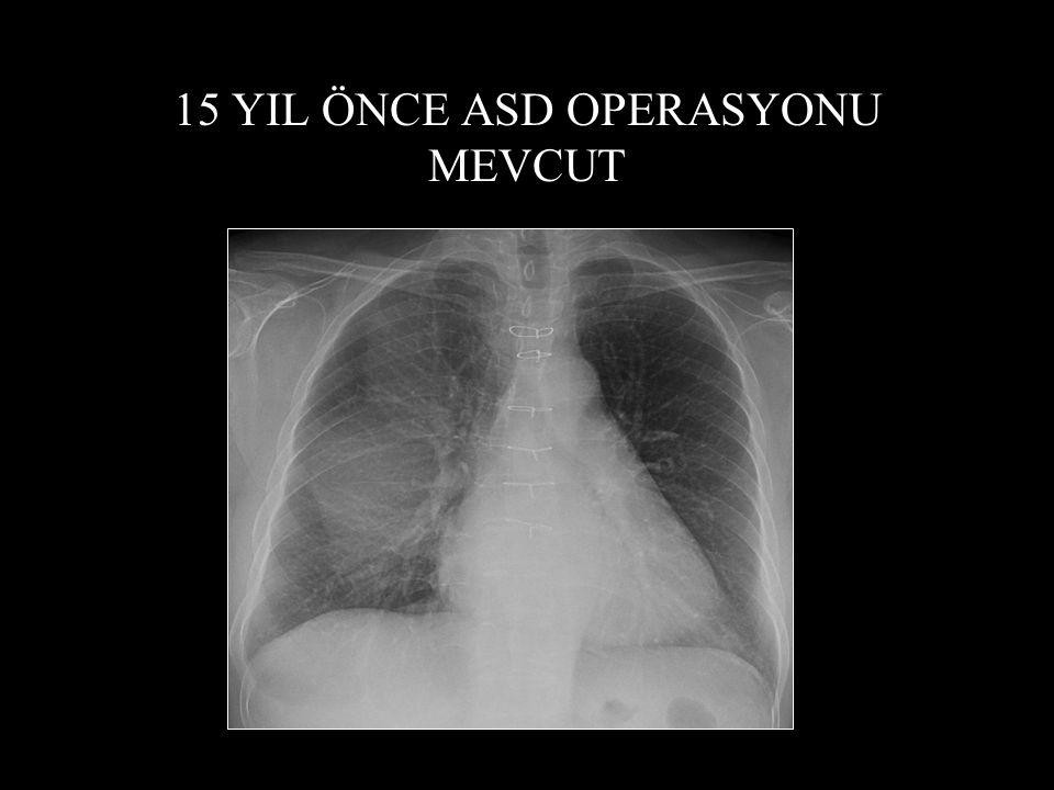 15 YIL ÖNCE ASD OPERASYONU MEVCUT