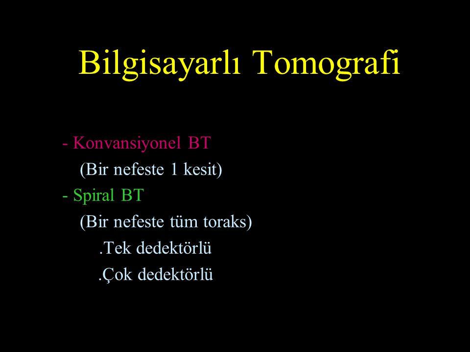 PET/BT Bilgisayarlı Tomografi Anatomik bilgi Positron Emisyon Tomografi Fonksiyonel bilgi PET/BT 1 + 1 = 3