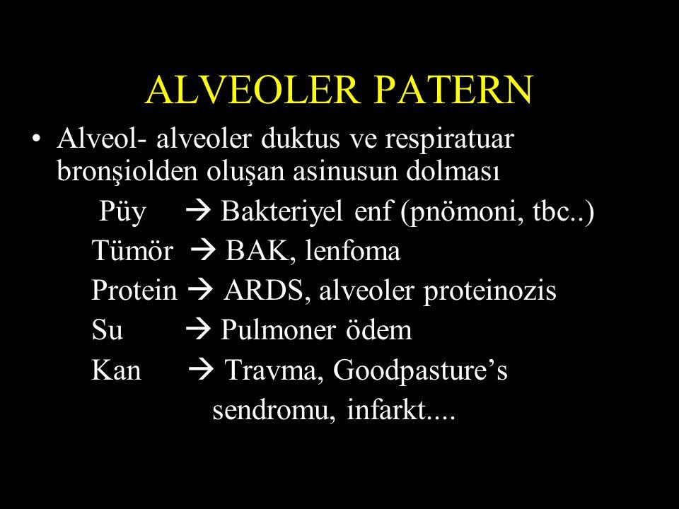 ALVEOLER PATERN Alveol- alveoler duktus ve respiratuar bronşiolden oluşan asinusun dolması Püy  Bakteriyel enf (pnömoni, tbc..) Tümör  BAK, lenfoma