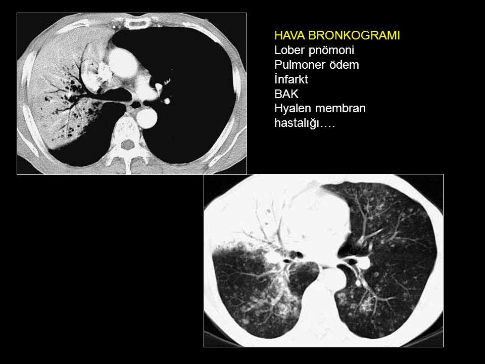 HAVA BRONKOGRAMI Lober pnömoni Pulmoner ödem İnfarkt BAK Hyalen membran hastalığı….