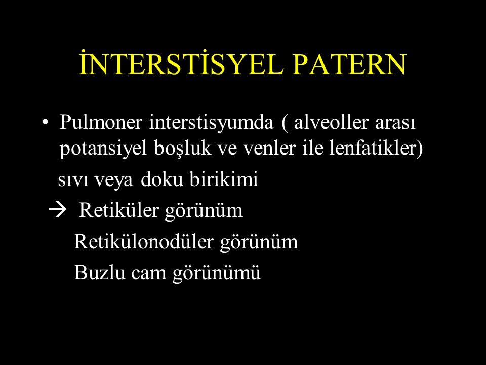 İNTERSTİSYEL PATERN Pulmoner interstisyumda ( alveoller arası potansiyel boşluk ve venler ile lenfatikler) sıvı veya doku birikimi  Retiküler görünüm