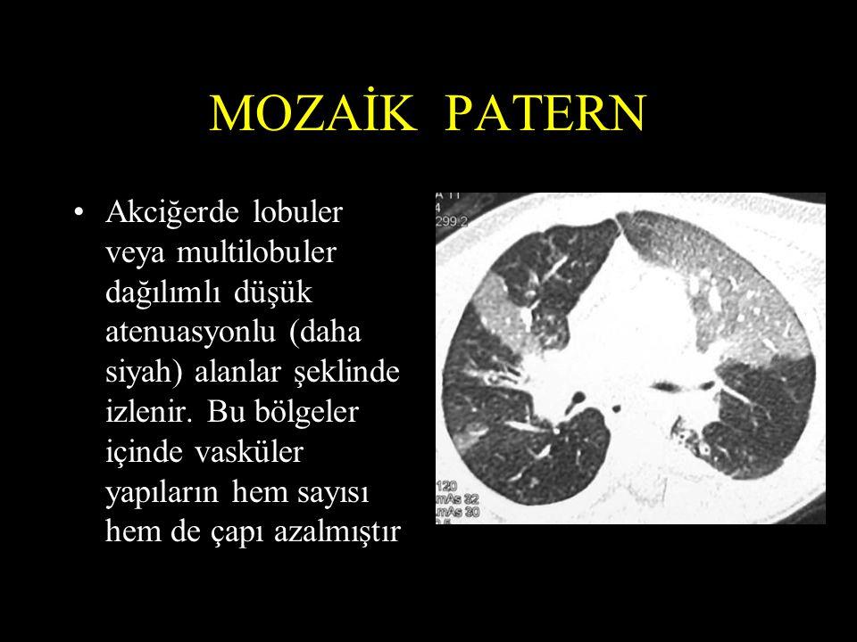 MOZAİK PATERN Akciğerde lobuler veya multilobuler dağılımlı düşük atenuasyonlu (daha siyah) alanlar şeklinde izlenir. Bu bölgeler içinde vasküler yapı