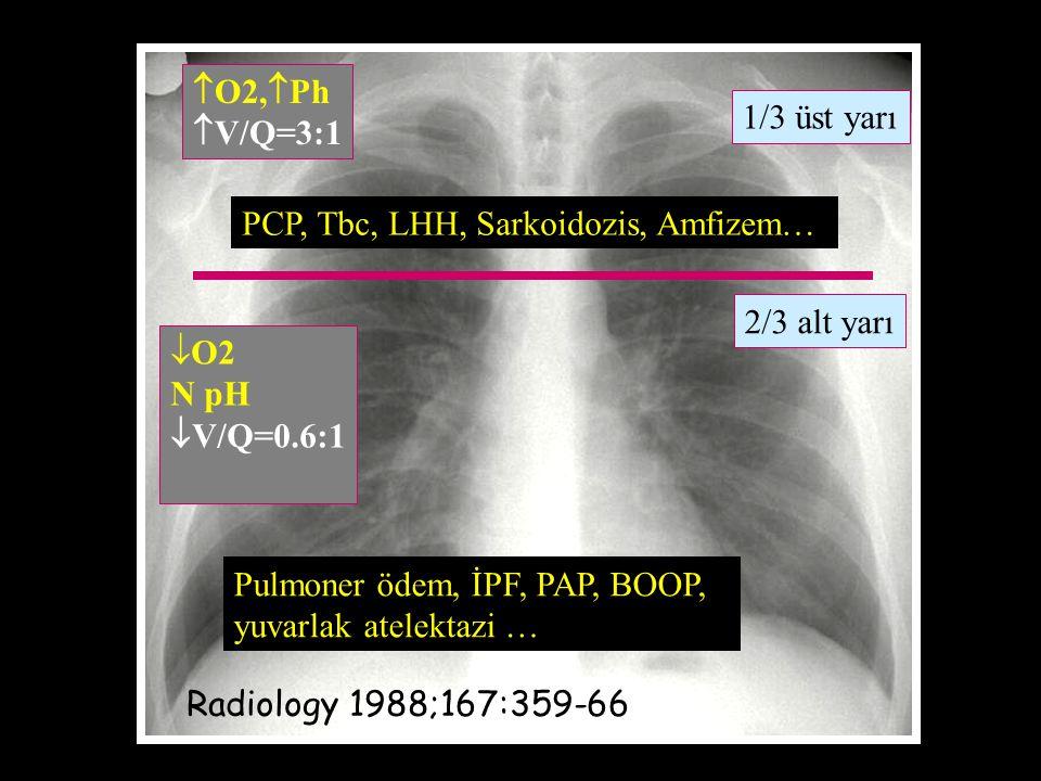 O2,  Ph  V/Q=3:1  O2 N pH  V/Q=0.6:1 1/3 üst yarı 2/3 alt yarı Radiology 1988;167:359-66 PCP, Tbc, LHH, Sarkoidozis, Amfizem… Pulmoner ödem, İPF