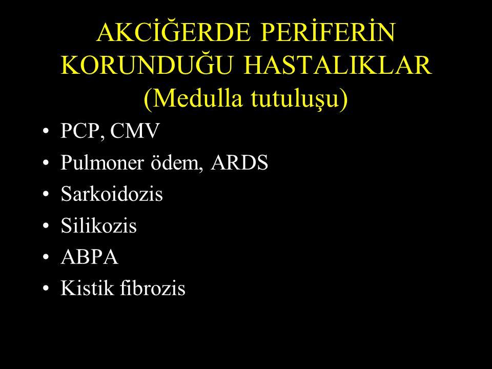 AKCİĞERDE PERİFERİN KORUNDUĞU HASTALIKLAR (Medulla tutuluşu) PCP, CMV Pulmoner ödem, ARDS Sarkoidozis Silikozis ABPA Kistik fibrozis