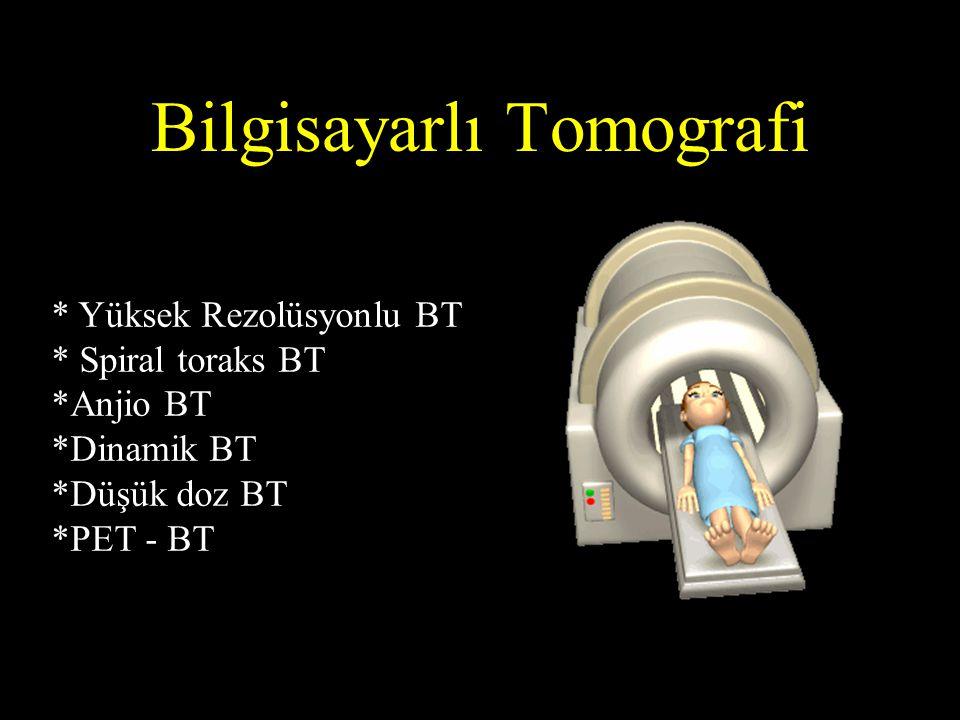 YÇBT Endikasyonları Her tür interstisyel akciğer hastalığı (kollajen doku hastalığından, enfeksiyona ilaç reaksiyonundan lenfanjitik metastaza kadar) Bronşektazi Fungal enfeksiyonlar Buzlu cam/ hemoptizi etiyolojisi için Bronşiolitis obliterans (ekspiryumda)