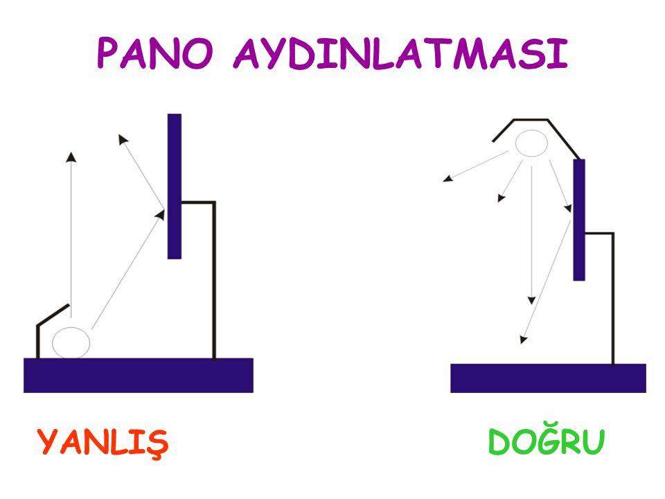 PANO AYDINLATMASI YANLIŞ DOĞRU