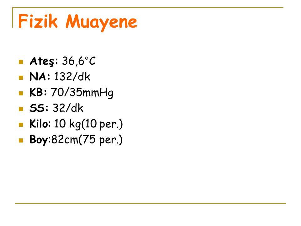 Fizik Muayene Ateş: 36,6°C NA: 132/dk KB: 70/35mmHg SS: 32/dk Kilo: 10 kg(10 per.) Boy:82cm(75 per.)