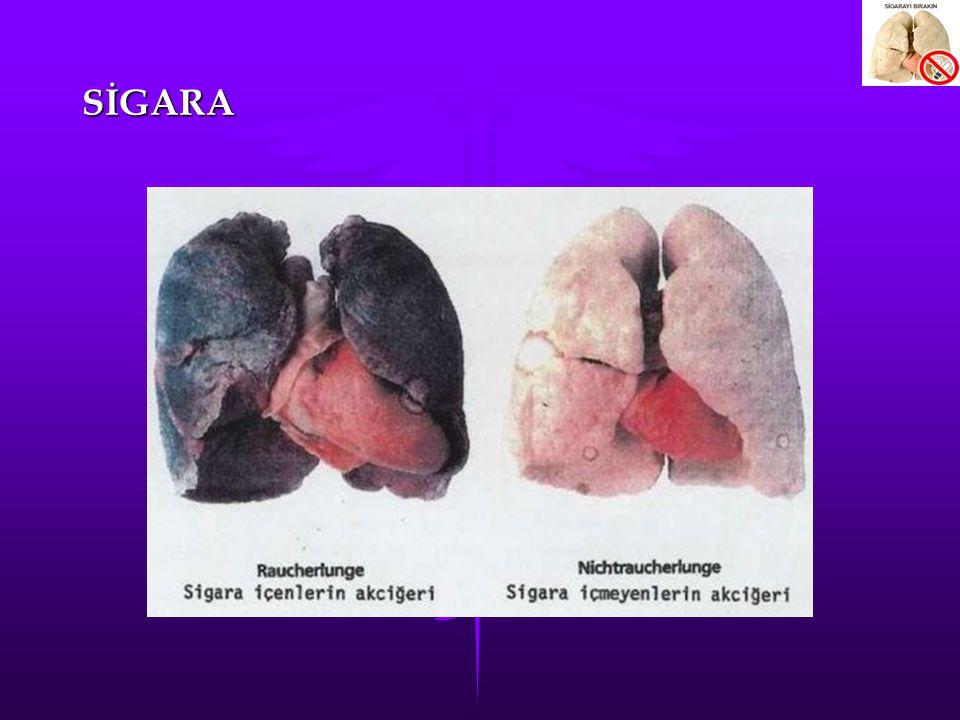 SİGARANIN VÜCUDA ETKİLERİ Baş yüz Baş yüz Akciğerler ve Bronşlar Akciğerler ve Bronşlar Kalp Kalp Diğer organlar Diğer organlar