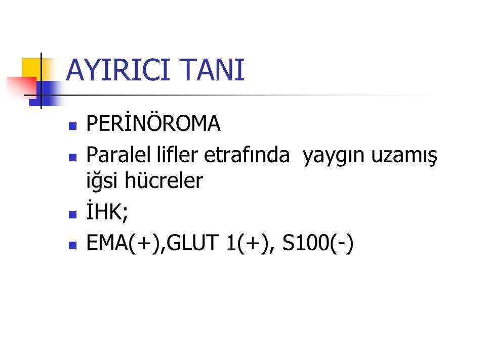AYIRICI TANI PERİNÖROMA Paralel lifler etrafında yaygın uzamış iğsi hücreler İHK; EMA(+),GLUT 1(+), S100(-)