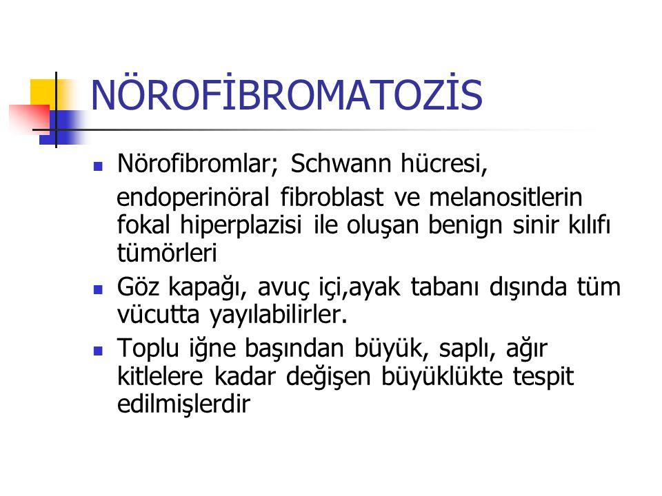 NÖROFİBROMATOZİS Nörofibromlar; Schwann hücresi, endoperinöral fibroblast ve melanositlerin fokal hiperplazisi ile oluşan benign sinir kılıfı tümörler