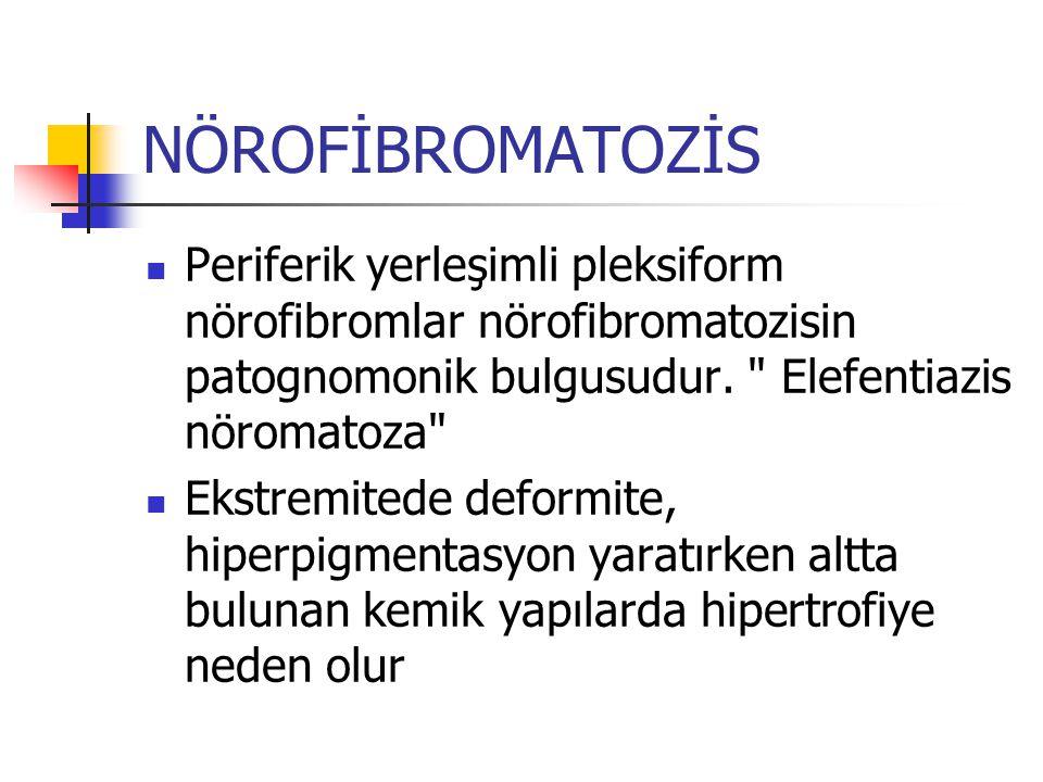 NÖROFİBROMATOZİS Periferik yerleşimli pleksiform nörofibromlar nörofibromatozisin patognomonik bulgusudur.