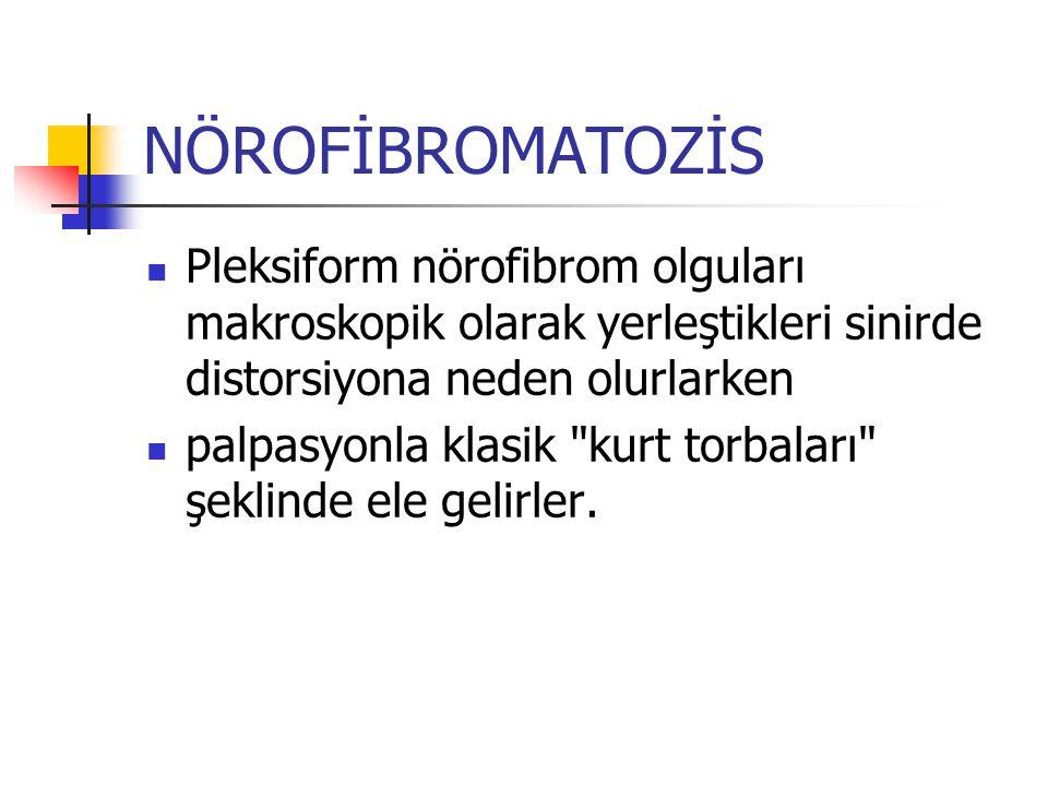 NÖROFİBROMATOZİS Pleksiform nörofibrom olguları makroskopik olarak yerleştikleri sinirde distorsiyona neden olurlarken palpasyonla klasik