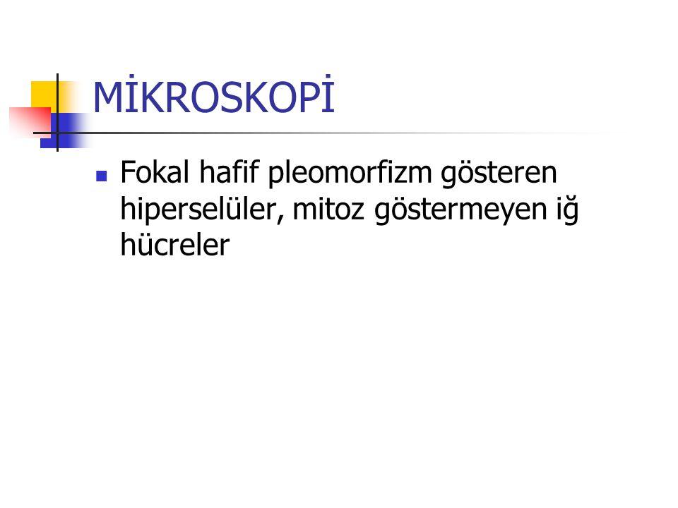 MİKROSKOPİ Fokal hafif pleomorfizm gösteren hiperselüler, mitoz göstermeyen iğ hücreler