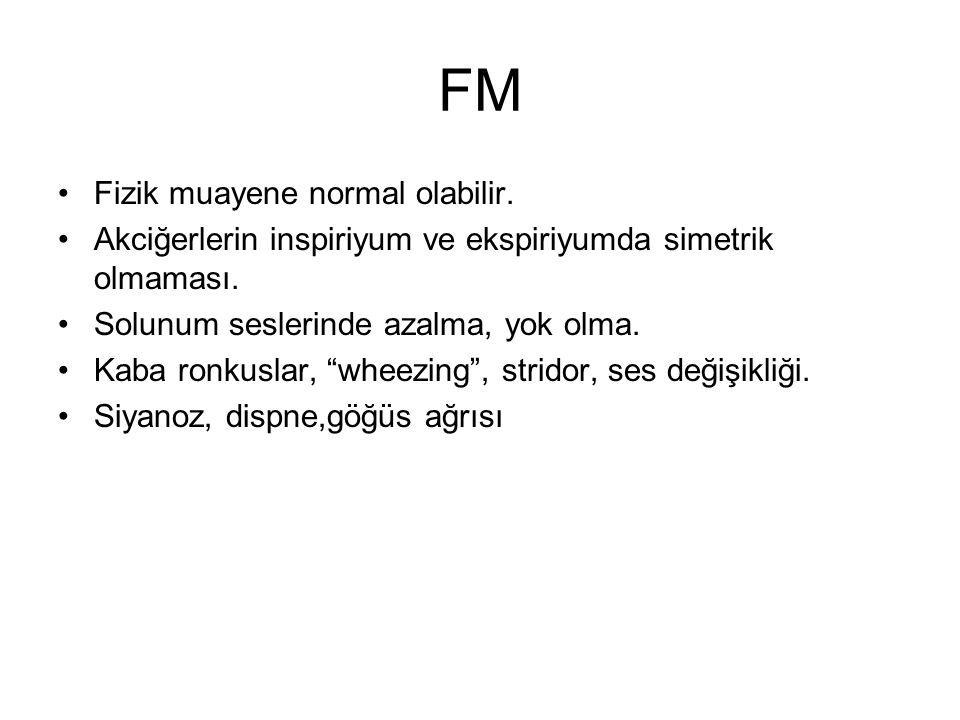 FM Fizik muayene normal olabilir.Akciğerlerin inspiriyum ve ekspiriyumda simetrik olmaması.