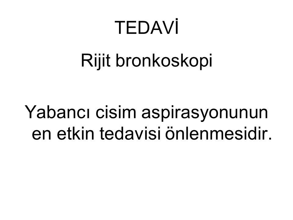 TEDAVİ Rijit bronkoskopi Yabancı cisim aspirasyonunun en etkin tedavisi önlenmesidir.