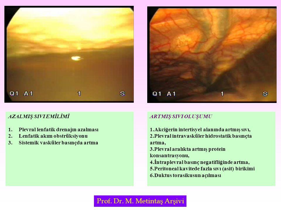 Sklerozan Ajanlar TalkTalk BleomisinBleomisin Doksisiklin, Tetrasiklin,Doksisiklin, Tetrasiklin, MinosiklinMinosiklin Corynbacterium ParvumCorynbacterium Parvum KinakrinKinakrin Fibrin yapıştırıcılarFibrin yapıştırıcılar Otolog kanOtolog kan Gümüş nitratGümüş nitrat İodopovidoneİodopovidone OK 432OK 432 İdeal sklerozan ajan Yüksek derecede etkili, Yüksek derecede etkili, Kolay uygulanabilir, Kolay uygulanabilir, Ucuz olması, Ucuz olması, Yan etkileri olmamalı Yan etkileri olmamalı