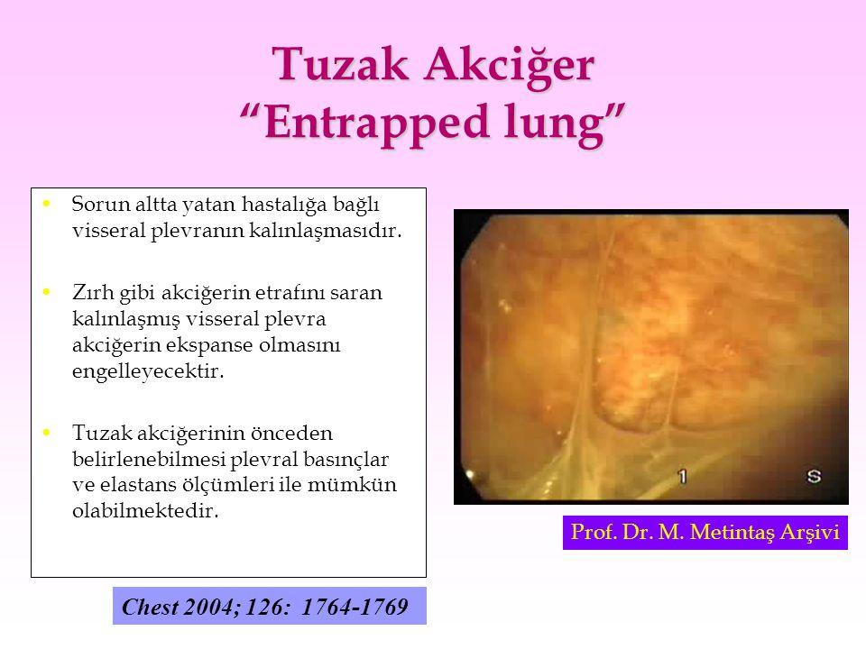"""Tuzak Akciğer """"Entrapped lung"""" Sorun altta yatan hastalığa bağlı visseral plevranın kalınlaşmasıdır. Zırh gibi akciğerin etrafını saran kalınlaşmış vi"""