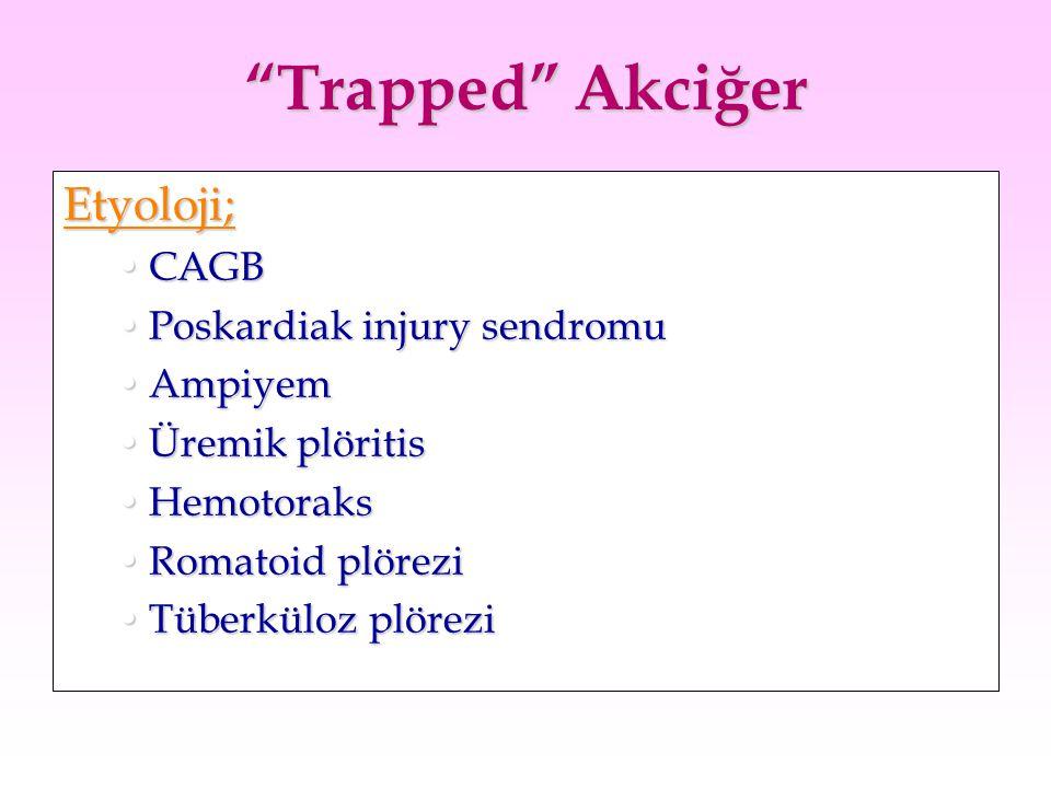 """Trapped"" Akciğer Etyoloji; CAGBCAGB Poskardiak injury sendromuPoskardiak injury sendromu AmpiyemAmpiyem Üremik plöritisÜremik plöritis HemotoraksHemo"