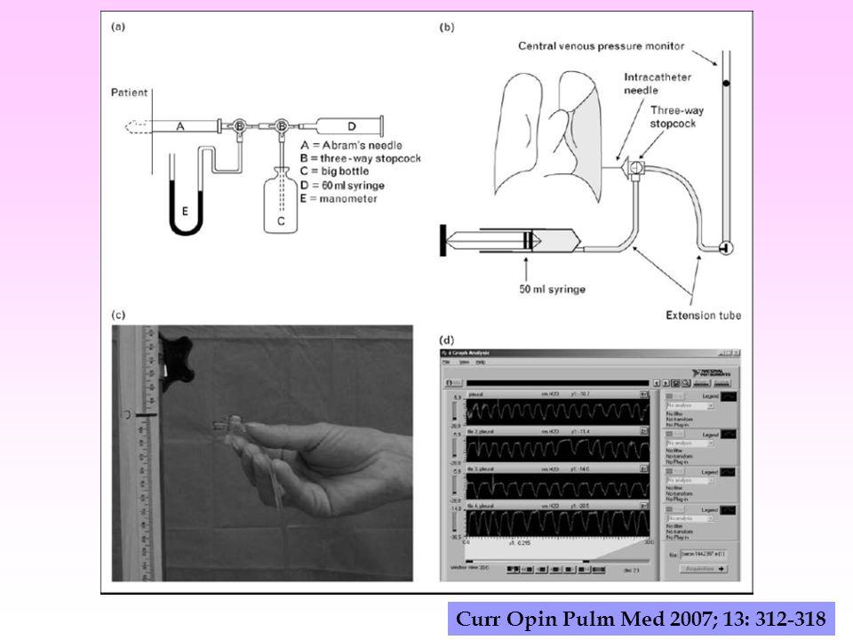 Curr Opin Pulm Med 2007; 13: 312-318