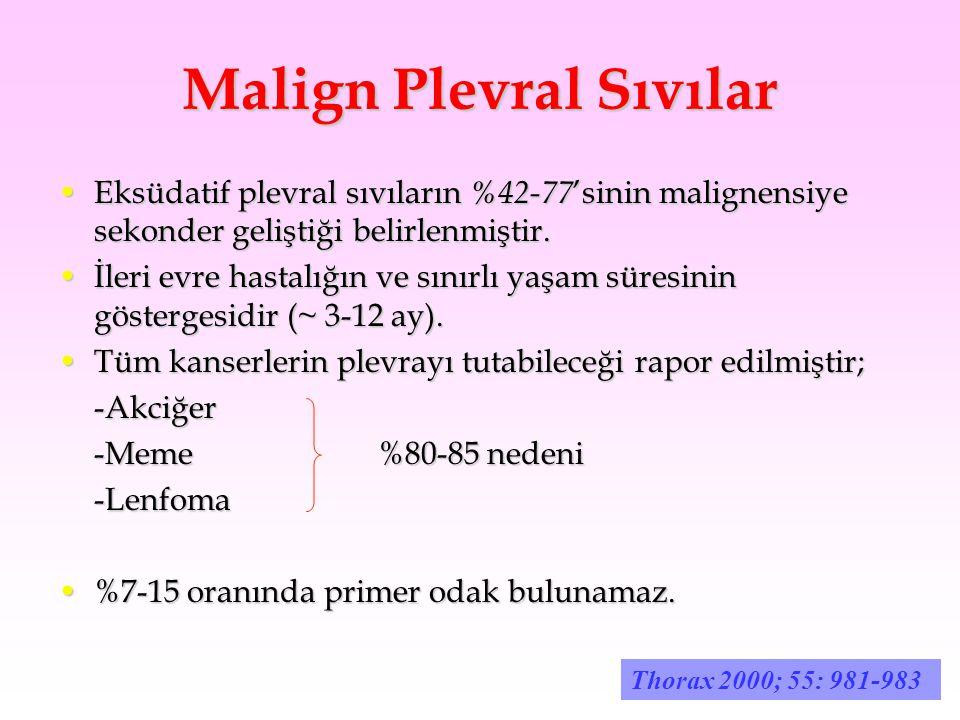 Malign Plevral Sıvılar Eksüdatif plevral sıvıların %42-77 'sinin malignensiye sekonder geliştiği belirlenmiştir.Eksüdatif plevral sıvıların %42-77 'si