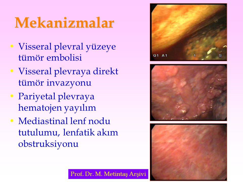 Mekanizmalar Visseral plevral yüzeye tümör embolisi Visseral plevraya direkt tümör invazyonu Pariyetal plevraya hematojen yayılım Mediastinal lenf nod