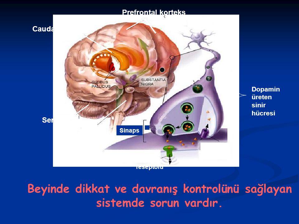 Caudat Nukleus Prefrontal korteks Serebellum Dopamin üreten sinir hücresi Dopamin reseptörü Sinaps Serebellar vermis Beyinde dikkat ve davranış kontrolünü sağlayan sistemde sorun vardır.