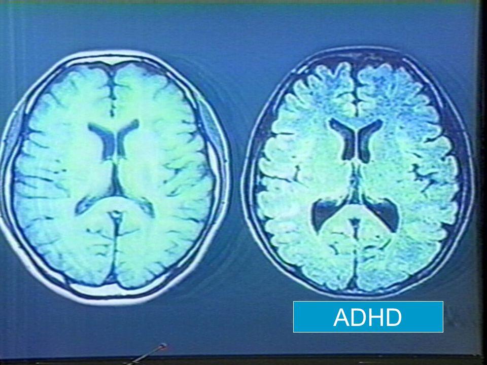 PET:-ADHD'li erişkinlerde Prefrontal Kortex'de metabolizma azalması PET:-ADHD'li erişkinlerde Prefrontal Kortex'de metabolizma azalması -1990 yılında Zametkin'in yaptığı çalışmada'da erişkin ADHD'lilerde azalmış glukoz re-uptake'i bulunmuş.