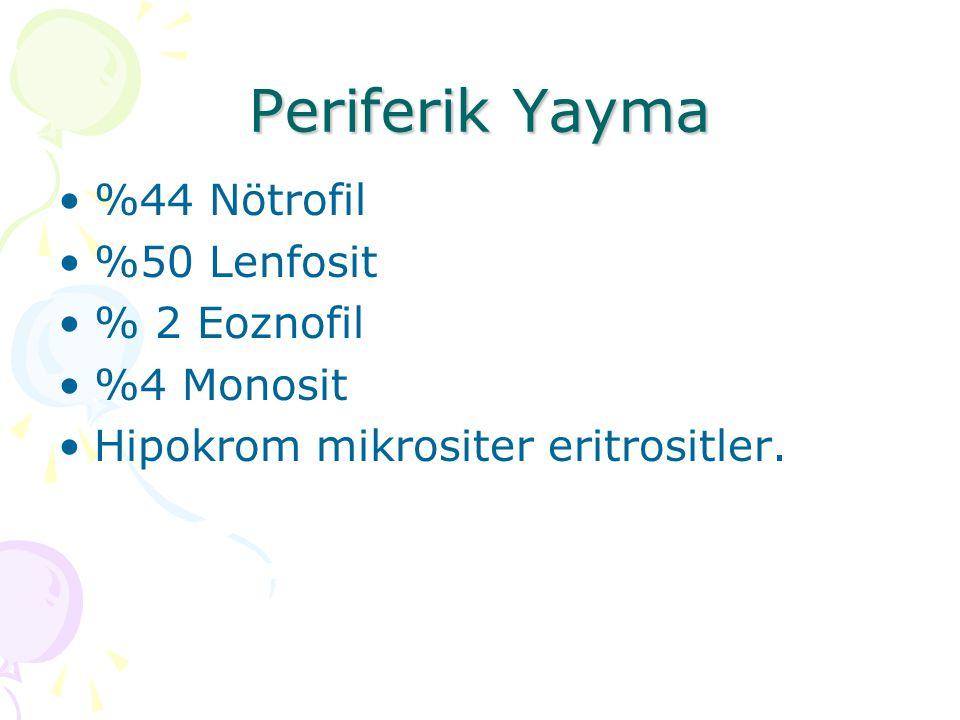 Periferik Yayma %44 Nötrofil %50 Lenfosit % 2 Eoznofil %4 Monosit Hipokrom mikrositer eritrositler.