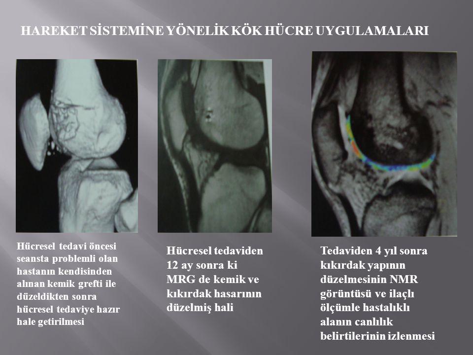 HAREKET SİSTEMİNE YÖNELİK KÖK HÜCRE UYGULAMALARI Hücresel tedavi öncesi seansta problemli olan hastanın kendisinden alınan kemik grefti ile düzeldikten sonra hücresel tedaviye hazır hale getirilmesi Hücresel tedaviden 12 ay sonra ki MRG de kemik ve kıkırdak hasarının düzelmiş hali Tedaviden 4 yıl sonra kıkırdak yapının düzelmesinin NMR görüntüsü ve ilaçlı ölçümle hastalıklı alanın canlılık belirtilerinin izlenmesi