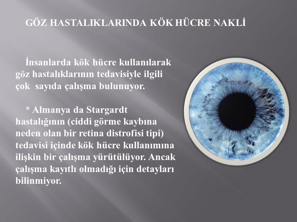 GÖZ HASTALIKLARINDA KÖK HÜCRE NAKLİ İnsanlarda kök hücre kullanılarak göz hastalıklarının tedavisiyle ilgili çok sayıda çalışma bulunuyor. * Almanya d