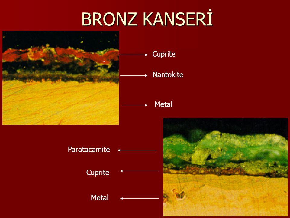 BRONZ KANSERİ Ancak, toprakaltında dengede bulunan eser, kazı sırasında topraktan çıkarıldığında