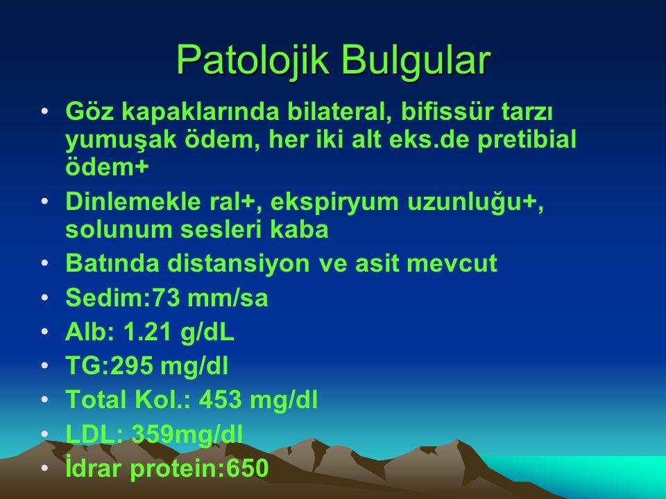 Patolojik Bulgular Göz kapaklarında bilateral, bifissür tarzı yumuşak ödem, her iki alt eks.de pretibial ödem+ Dinlemekle ral+, ekspiryum uzunluğu+, s