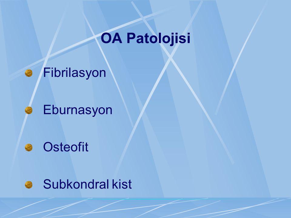 OA Patolojisi Fibrilasyon Eburnasyon Osteofit Subkondral kist