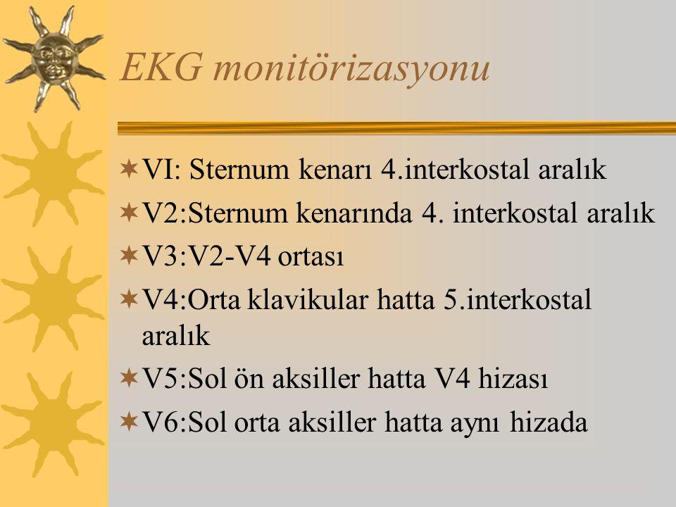 EKG monitörizasyonu  VI: Sternum kenarı 4.interkostal aralık  V2:Sternum kenarında 4.