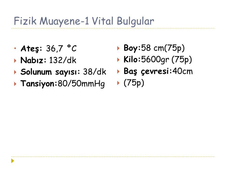 Fizik Muayene-1 Vital Bulgular Ateş: 36,7 °C  Nabız: 132/dk  Solunum sayısı: 38/dk  Tansiyon:80/50mmHg  Boy:58 cm(75p)  Kilo:5600gr (75p)  Baş ç